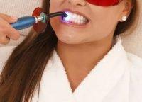 Методы отбеливания зубов в стоматологических клиниках